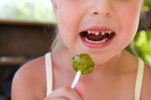 Kind mit Karies durch Süßigkeiten