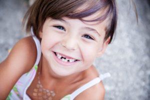 Kind mit Milchzähnen und Zahnlücke lächelt